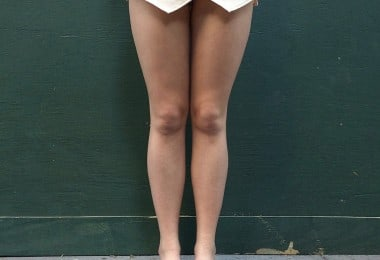 City Legs: Documenting the Legs of New York