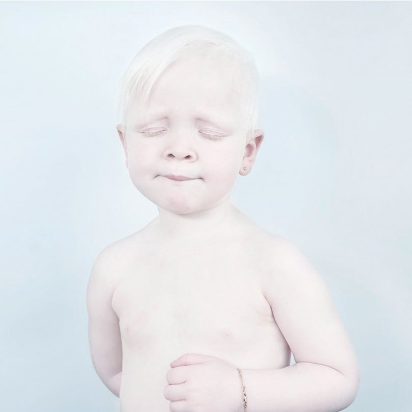 Fragile Snow White Portraits of Albinos by Sanne De Wilde 5