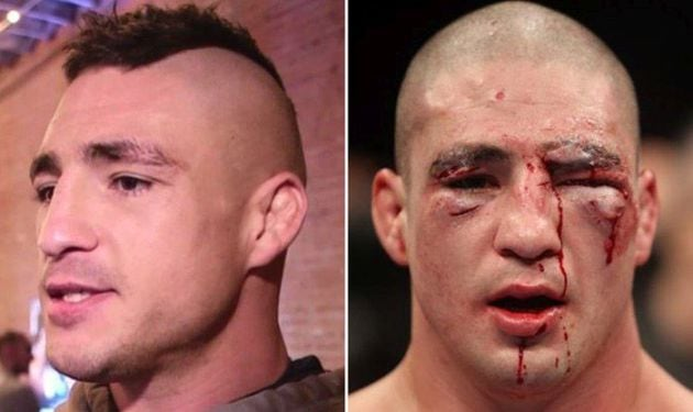 Before and After: Horrifying Photos of UFC Fighters 3