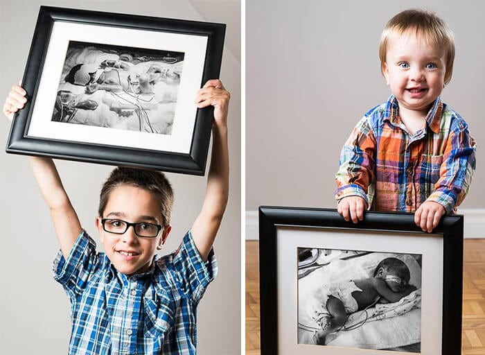 Felix, born at 23 weeks, and his brother Alexis, born at almost 33 weeks
