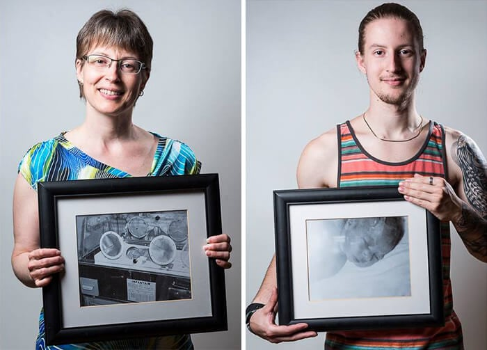 Julie, born at 7 months of pregnancy, and her son Kevin, born at 34 weeks