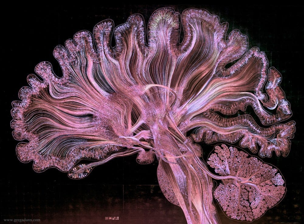 brain depicted with gold leaf greg dunn 3