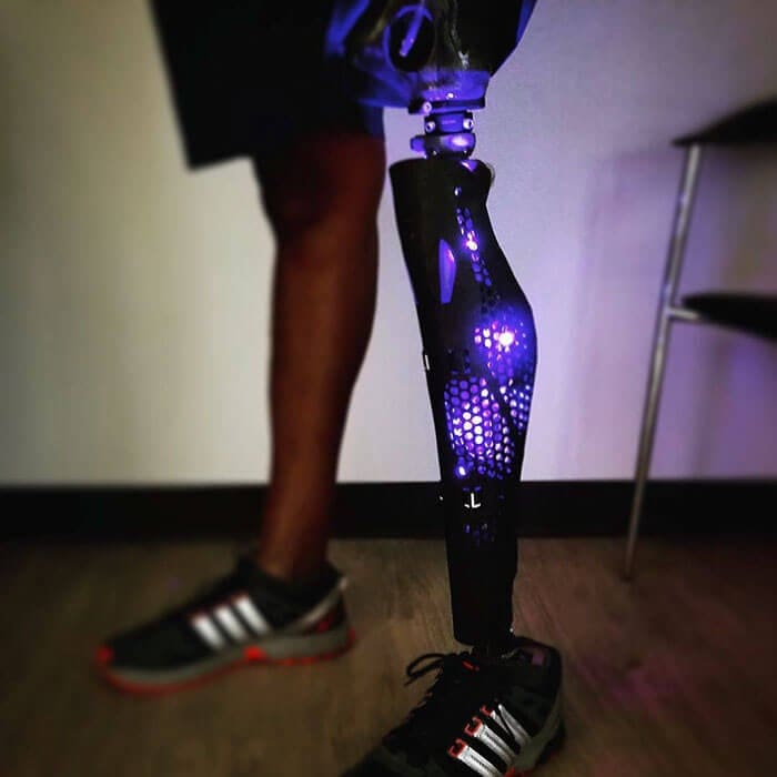 leg prosthetics alleles studio fy 1