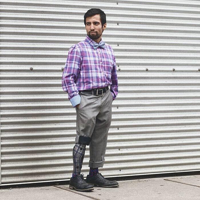 leg prosthetics alleles studio fy 3