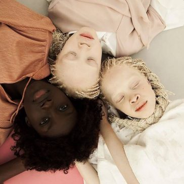twin models with albinism fy 8