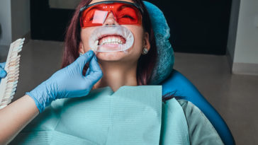 a woman dentist checks the level of teeth whitenin J6C3BS2